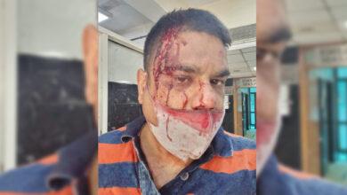 Photo of دہلی کینٹ بورڈ کے کانگریسی کونسلر سندیپ تنور پر حملہ