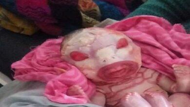 Photo of گوپال گنج کے اسپتال میں ایلین بے بی کی پیدائش